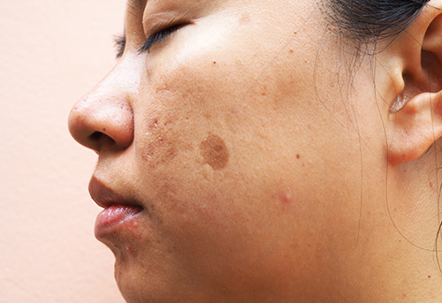 New study about treatment of facial spots or hormonal spots